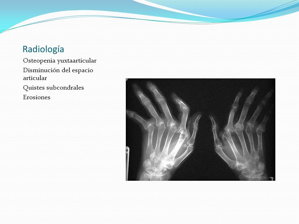 Radiología Osteopenia yuxtaarticular Disminución del espacio articular Quistes subcondrales Erosiones