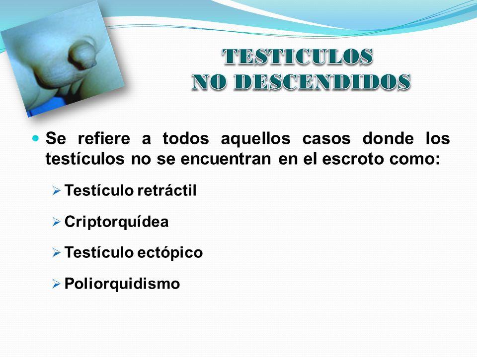 Se refiere a todos aquellos casos donde los testículos no se encuentran en el escroto como: Testículo retráctil Criptorquídea Testículo ectópico Polio