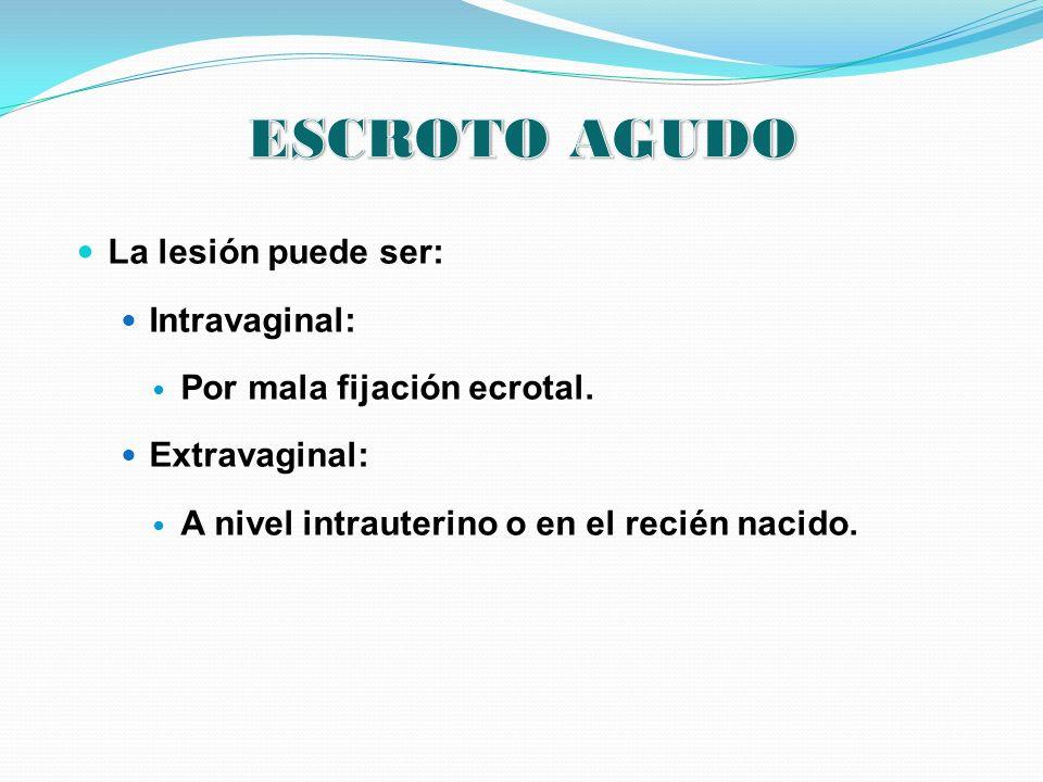 La lesión puede ser: Intravaginal: Por mala fijación ecrotal. Extravaginal: A nivel intrauterino o en el recién nacido.