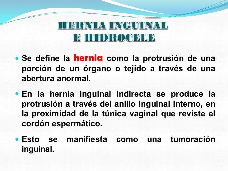 Se define la hernia como la protrusión de una porción de un órgano o tejido a través de una abertura anormal. En la hernia inguinal indirecta se produ