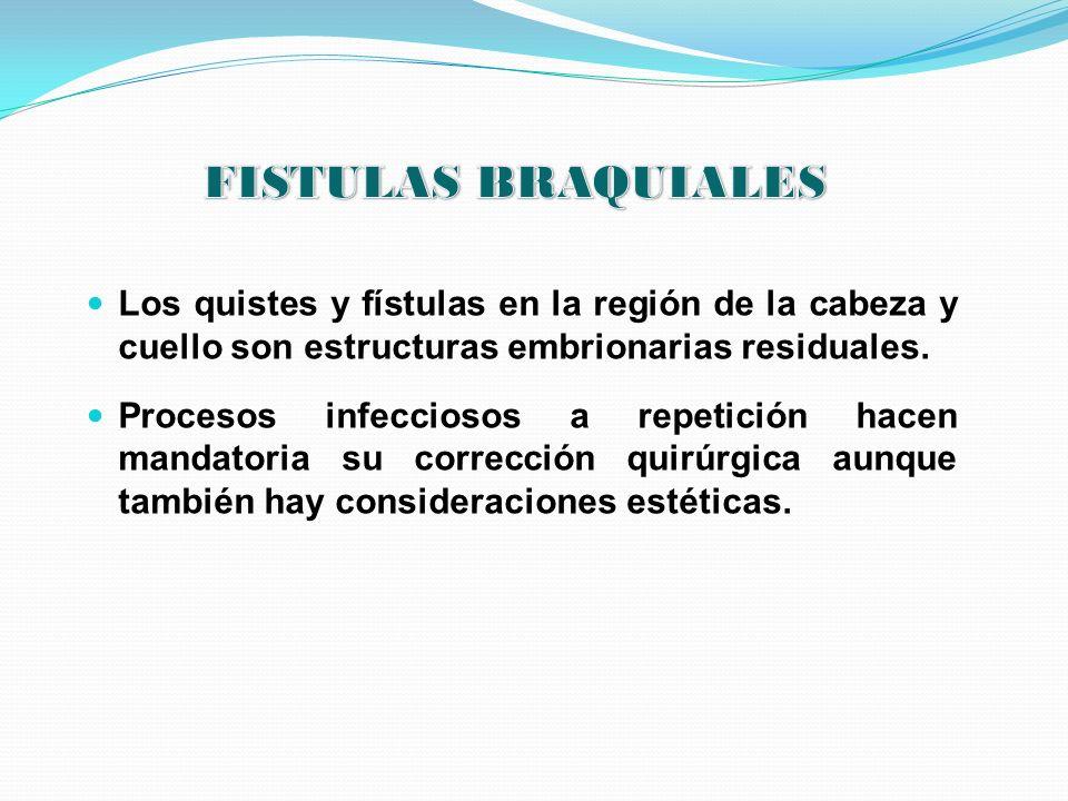 Los quistes y fístulas en la región de la cabeza y cuello son estructuras embrionarias residuales. Procesos infecciosos a repetición hacen mandatoria