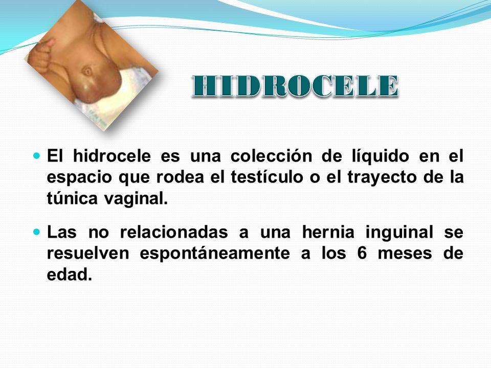 El hidrocele es una colección de líquido en el espacio que rodea el testículo o el trayecto de la túnica vaginal. Las no relacionadas a una hernia ing