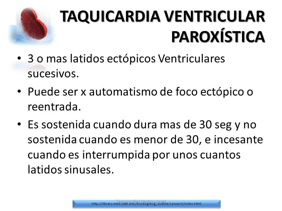 TAQUICARDIA VENTRICULAR PAROXÍSTICA 3 o mas latidos ectópicos Ventriculares sucesivos. Puede ser x automatismo de foco ectópico o reentrada. Es sosten