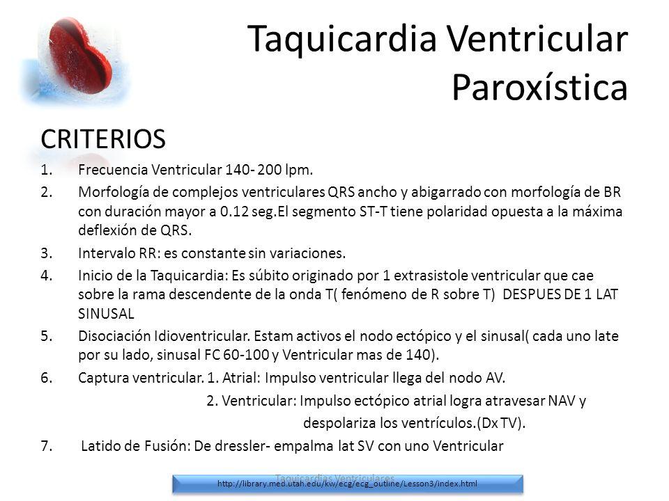 Taquicardia Ventricular Paroxística CRITERIOS 1.Frecuencia Ventricular 140- 200 lpm. 2.Morfología de complejos ventriculares QRS ancho y abigarrado co