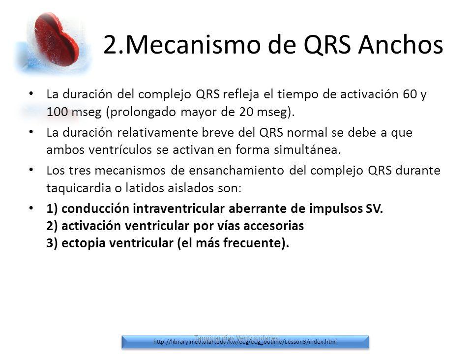 2.Mecanismo de QRS Anchos La duración del complejo QRS refleja el tiempo de activación 60 y 100 mseg (prolongado mayor de 20 mseg). La duración relati
