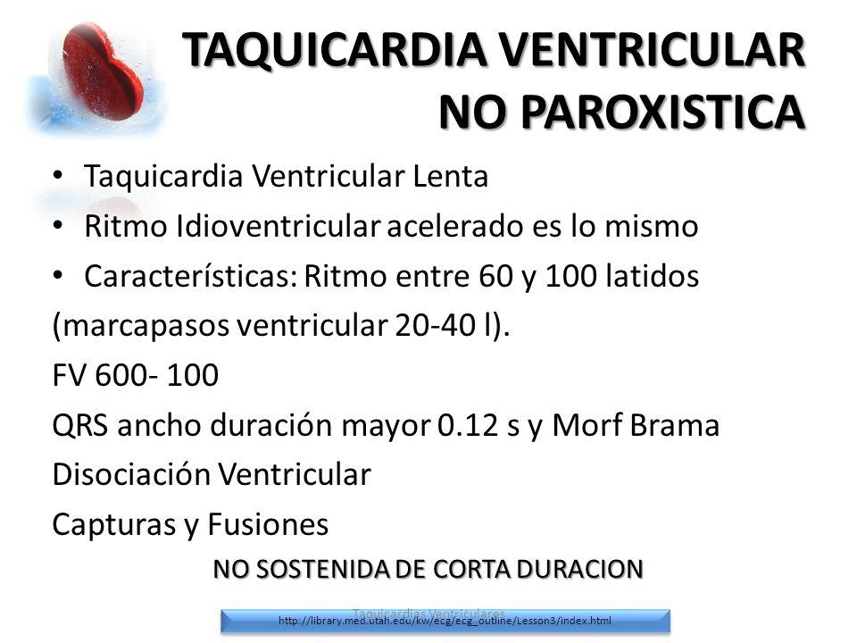 TAQUICARDIA VENTRICULAR NO PAROXISTICA Taquicardia Ventricular Lenta Ritmo Idioventricular acelerado es lo mismo Características: Ritmo entre 60 y 100