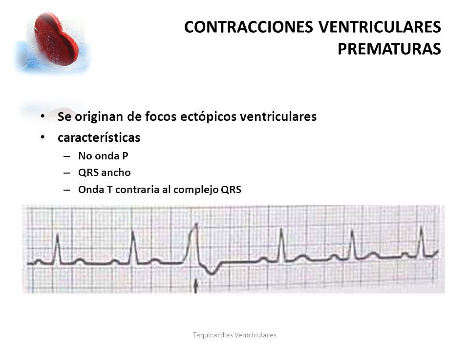 CONTRACCIONES VENTRICULARES PREMATURAS Taquicardias Ventriculares Se originan de focos ectópicos ventriculares características – No onda P – QRS ancho