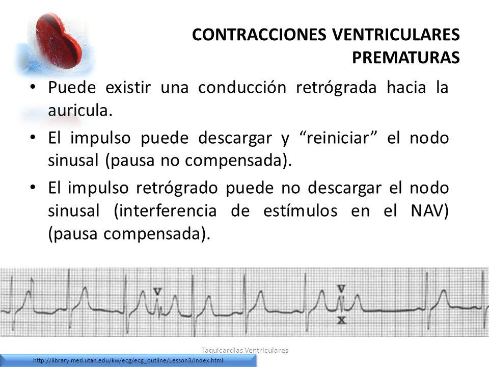 CONTRACCIONES VENTRICULARES PREMATURAS Puede existir una conducción retrógrada hacia la auricula. El impulso puede descargar y reiniciar el nodo sinus