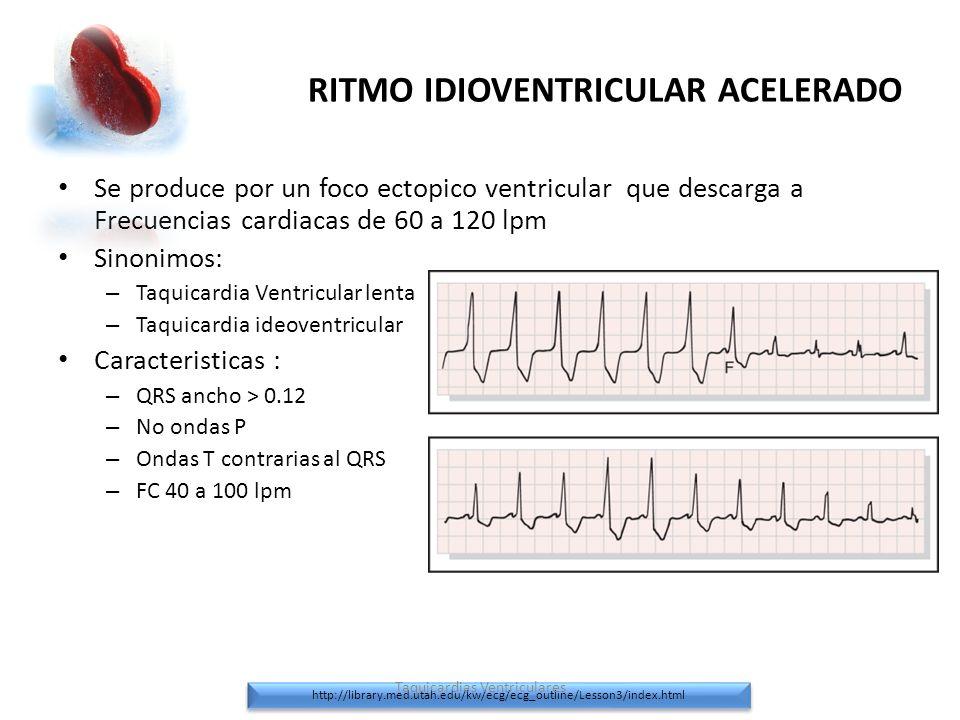 RITMO IDIOVENTRICULAR ACELERADO Se produce por un foco ectopico ventricular que descarga a Frecuencias cardiacas de 60 a 120 lpm Sinonimos: – Taquicar