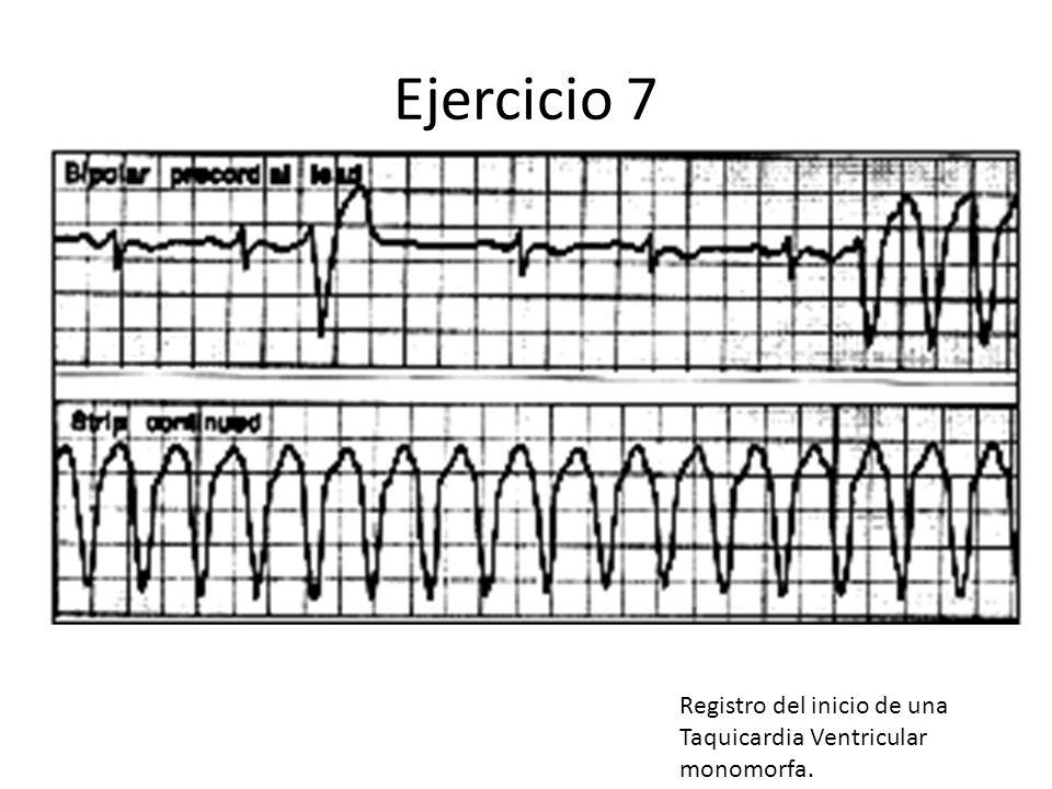 Ejercicio 7 Registro del inicio de una Taquicardia Ventricular monomorfa.