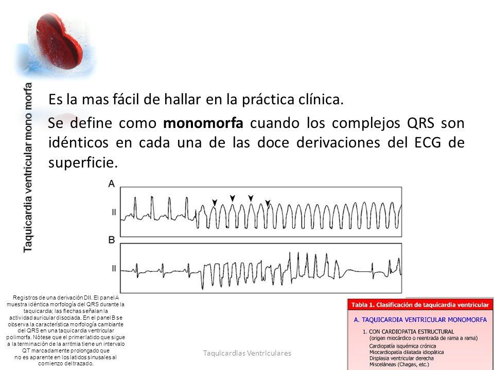Criterios de Brugada 99% Taquicardias Ventriculares 97% Taquicardias Supra ventriculares con QRS A 1.En ninguna precordial existe patrón RS 2.Si n precordiales hay morfología RS, intervalo R al nadir de S es mayor a 100 mseg.