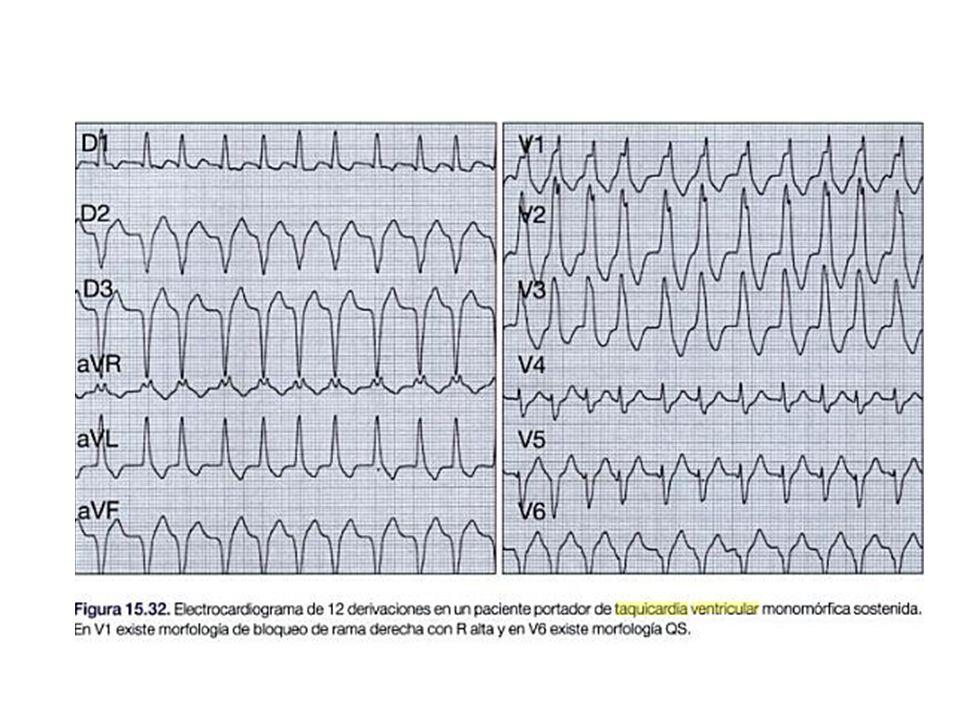 CONTRACCIONES VENTRICULARES PREMATURAS Taquicardias Ventriculares Se originan de focos ectópicos ventriculares características – No onda P – QRS ancho – Onda T contraria al complejo QRS
