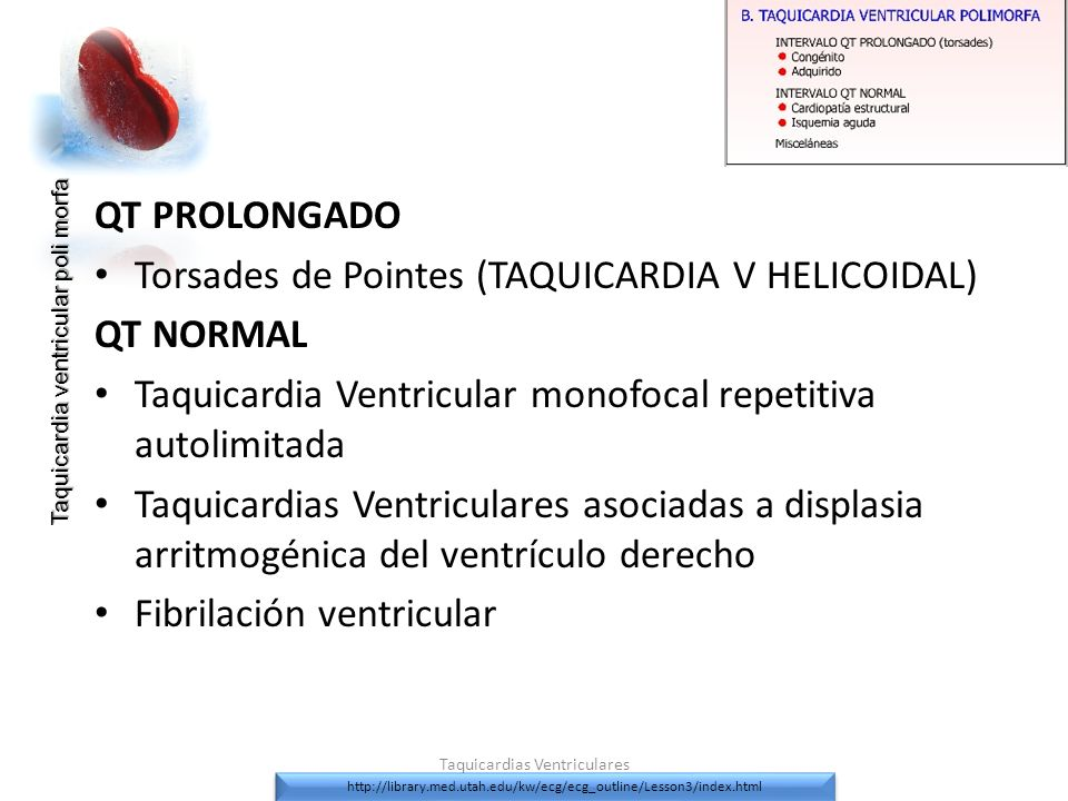 QT PROLONGADO Torsades de Pointes (TAQUICARDIA V HELICOIDAL) QT NORMAL Taquicardia Ventricular monofocal repetitiva autolimitada Taquicardias Ventricu