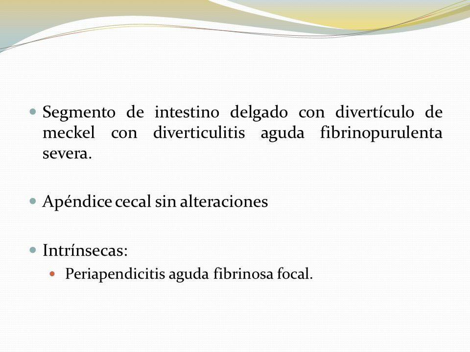 Segmento de intestino delgado con divertículo de meckel con diverticulitis aguda fibrinopurulenta severa. Apéndice cecal sin alteraciones Intrínsecas: