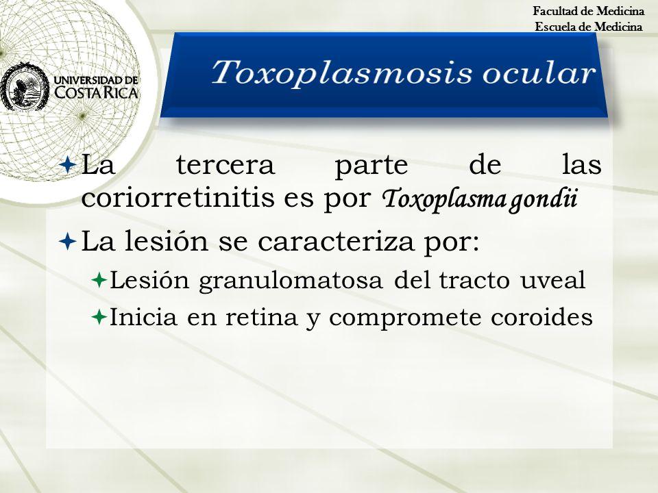 La tercera parte de las coriorretinitis es por Toxoplasma gondii La lesión se caracteriza por: Lesión granulomatosa del tracto uveal Inicia en retina