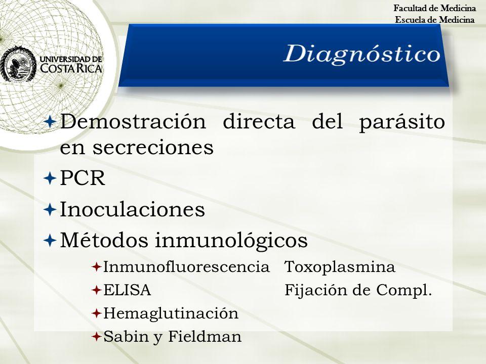 Demostración directa del parásito en secreciones PCR Inoculaciones Métodos inmunológicos InmunofluorescenciaToxoplasmina ELISAFijación de Compl. Hemag