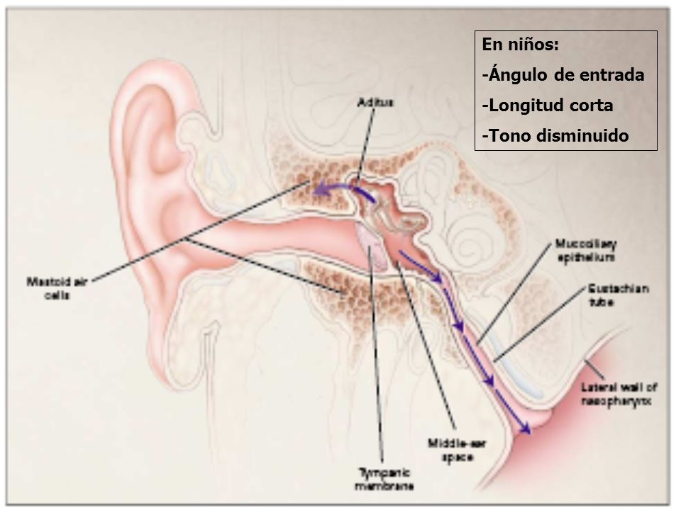 Etiología n S.pneumoniae: 30% n H. influenzae no tipificable: 20% n M.