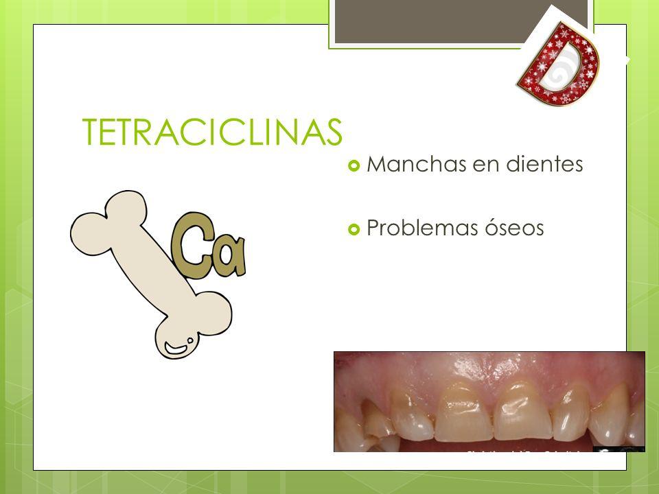 TETRACICLINAS Manchas en dientes Problemas óseos