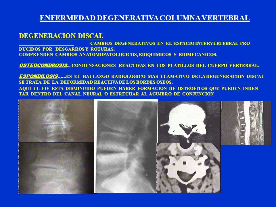 ENFERMEDAD DEGENERATIVA COLUMNA VERTEBRAL DEGENERACION DISCAL CAMBIOS DEGENERATIVOS EN EL ESPACIO INTERVERTEBRAL PRO- DUCIDOS POR DESGARROS Y ROTURAS.