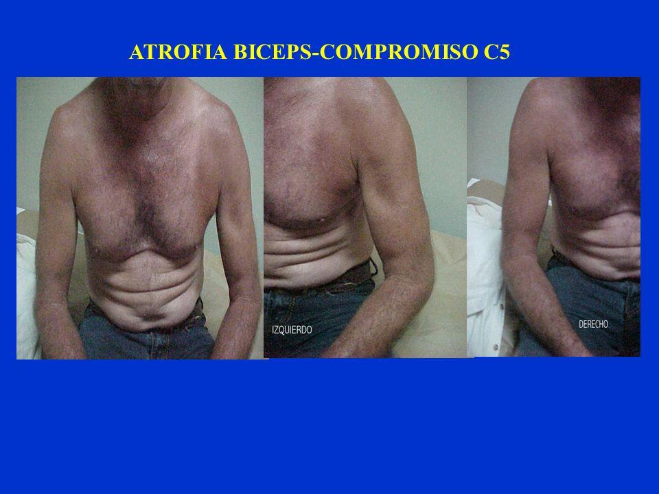 ATROFIA BICEPS-COMPROMISO C5