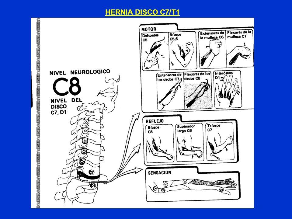 HERNIA DISCO C7/T1