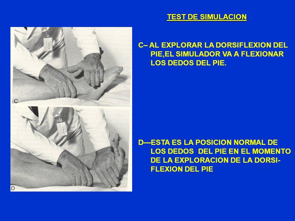 TEST DE SIMULACION C– AL EXPLORAR LA DORSIFLEXION DEL PIE,EL SIMULADOR VA A FLEXIONAR LOS DEDOS DEL PIE. DESTA ES LA POSICION NORMAL DE LOS DEDOS DEL