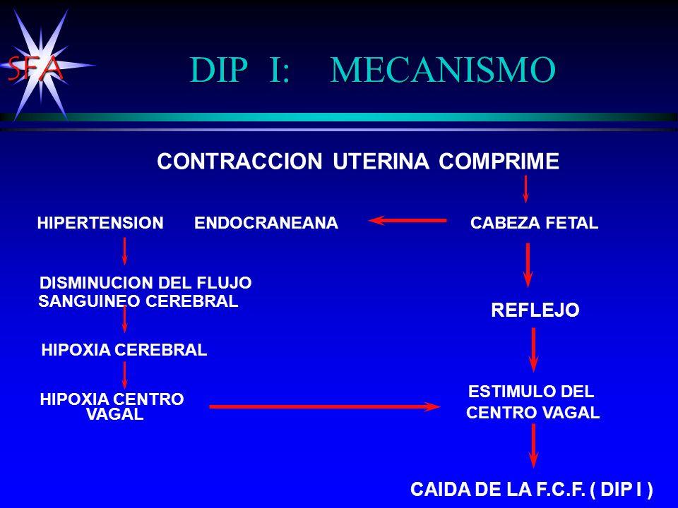 SFA DIP I: MECANISMO CONTRACCION UTERINA COMPRIME CABEZA FETAL DISMINUCION DEL FLUJO SANGUINEO CEREBRAL HIPOXIA CEREBRAL HIPOXIA CENTRO VAGAL ESTIMULO