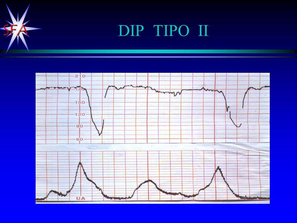 SFA DIP TIPO II