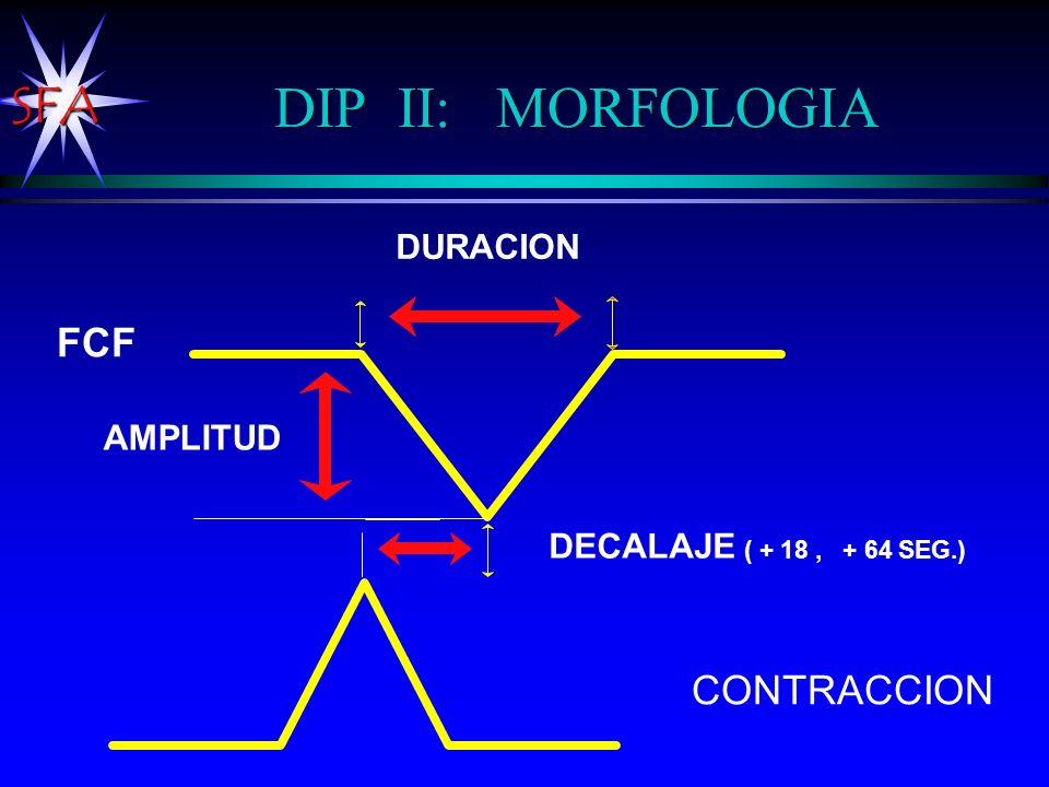 SFA DIP II: MORFOLOGIA AMPLITUD DURACION CONTRACCION DECALAJE ( + 18, + 64 SEG.) FCF