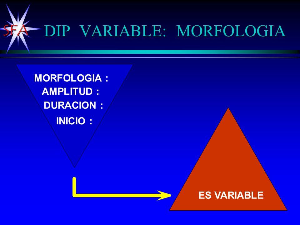 SFA DIP VARIABLE: MORFOLOGIA MORFOLOGIA : AMPLITUD : DURACION : INICIO : ES VARIABLE