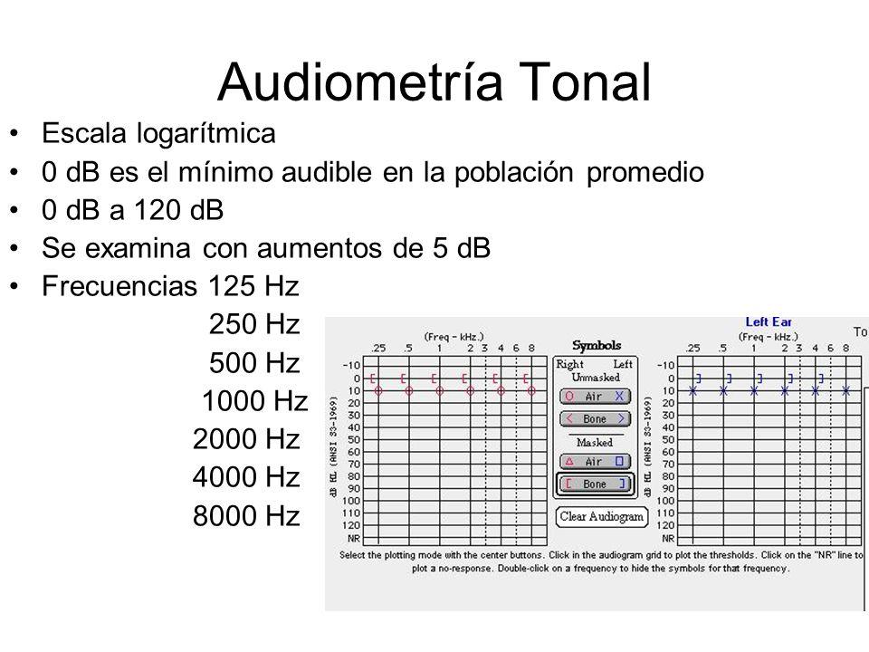 Audiometría Tonal Escala logarítmica 0 dB es el mínimo audible en la población promedio 0 dB a 120 dB Se examina con aumentos de 5 dB Frecuencias 125