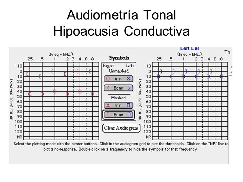 Audiometría Tonal Hipoacusia Conductiva