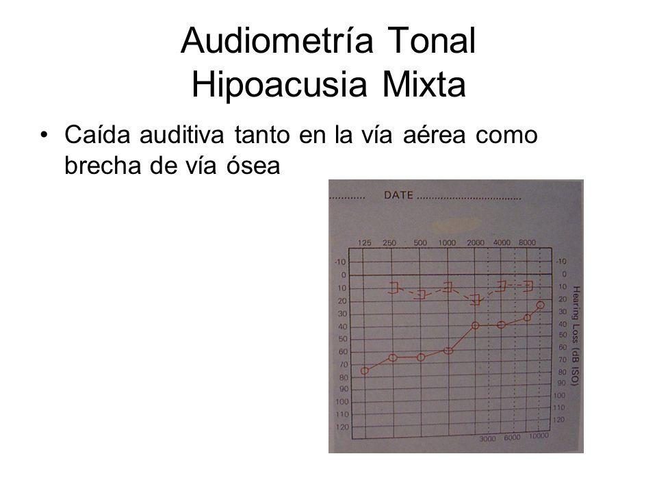 Audiometría Tonal Hipoacusia Mixta Caída auditiva tanto en la vía aérea como brecha de vía ósea