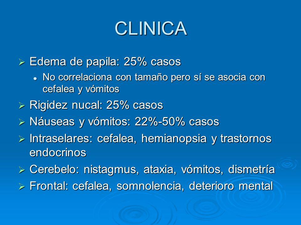 CLINICA Edema de papila: 25% casos Edema de papila: 25% casos No correlaciona con tamaño pero sí se asocia con cefalea y vómitos No correlaciona con t