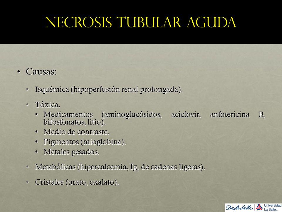 Necrosis tubular aguda Causas:Causas: Isquémica (hipoperfusión renal prolongada).Isquémica (hipoperfusión renal prolongada). Tóxica.Tóxica. Medicament