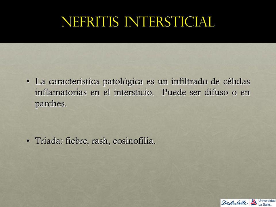 Nefritis intersticial La característica patológica es un infiltrado de células inflamatorias en el intersticio. Puede ser difuso o en parches.La carac