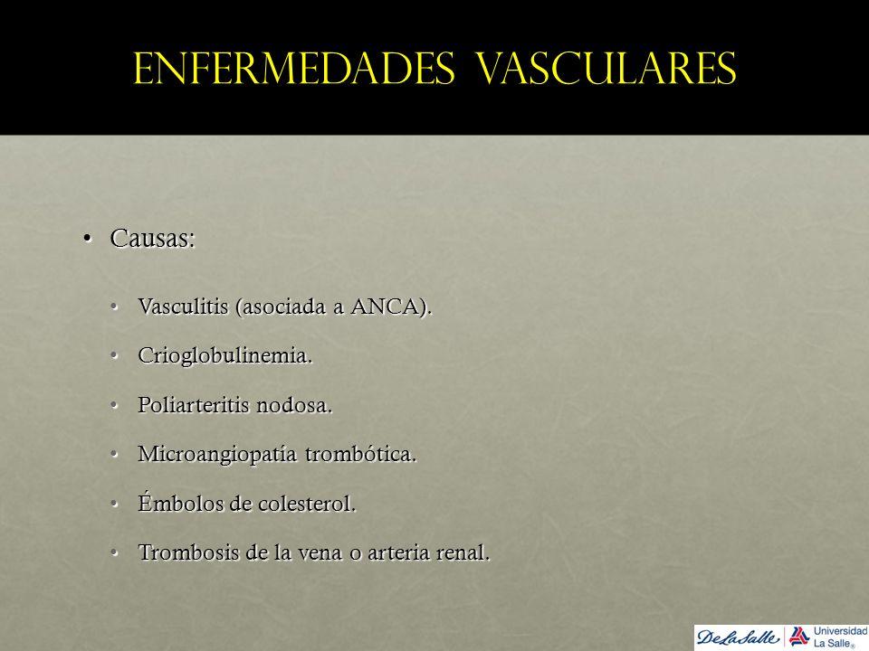 Enfermedades vasculares Causas:Causas: Vasculitis (asociada a ANCA).Vasculitis (asociada a ANCA). Crioglobulinemia.Crioglobulinemia. Poliarteritis nod
