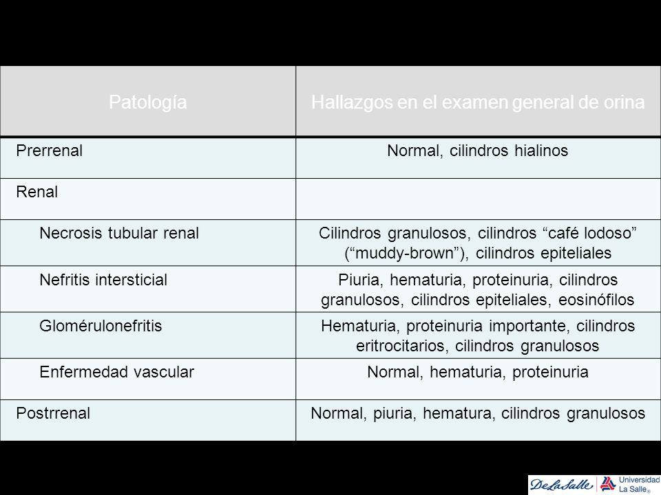 PatologíaHallazgos en el examen general de orina PrerrenalNormal, cilindros hialinos Renal Necrosis tubular renalCilindros granulosos, cilindros café