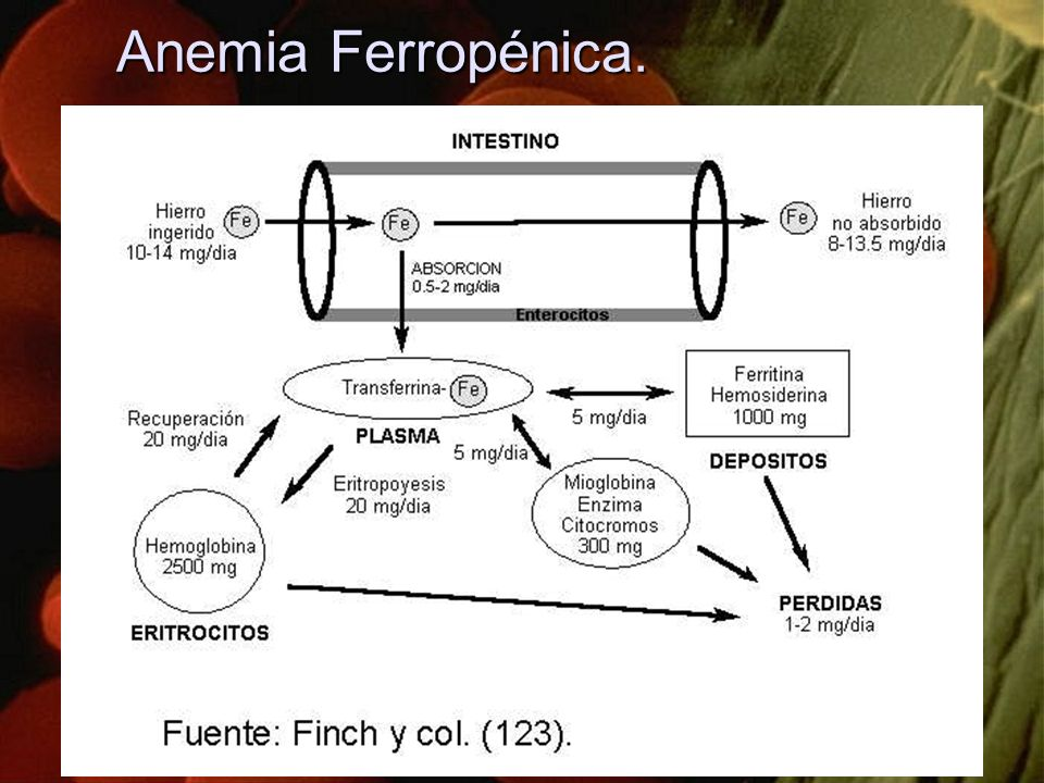 Anemia Ferropénica.