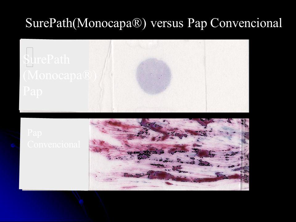 Beneficios de Las Pruebas de Pap en Base Líquida Portaobjetos de capa delgada son más uniformes y mas fáciles para cribar.