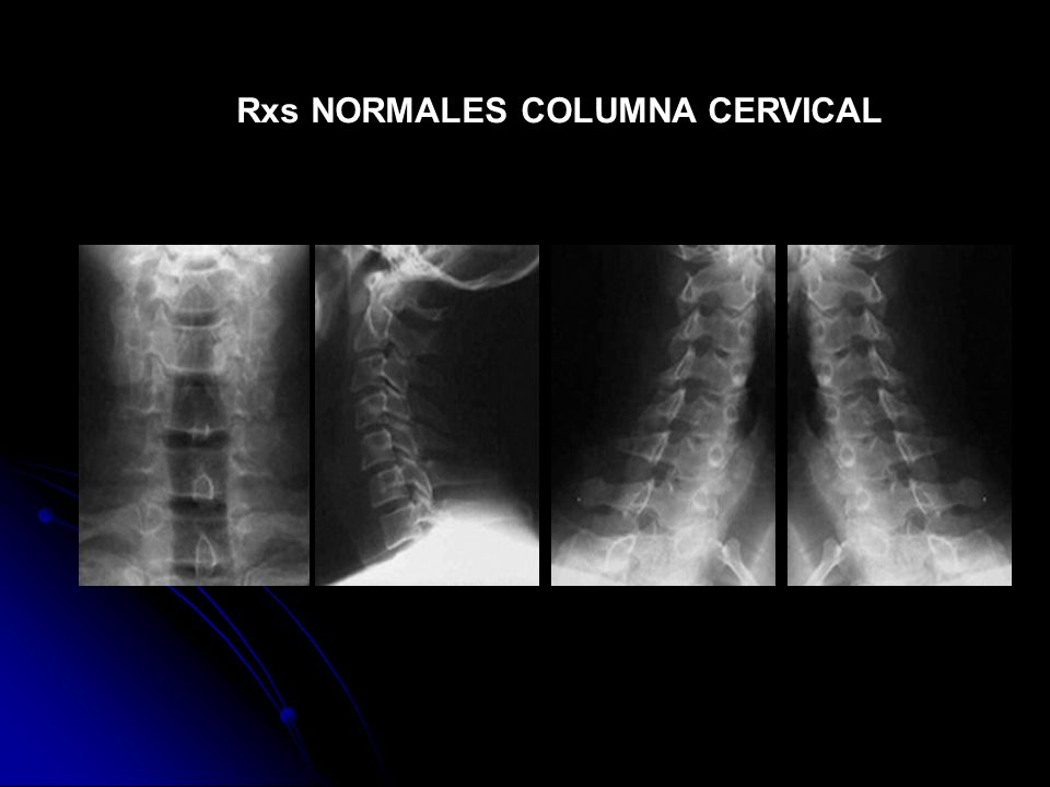 Rxs NORMALES COLUMNA CERVICAL