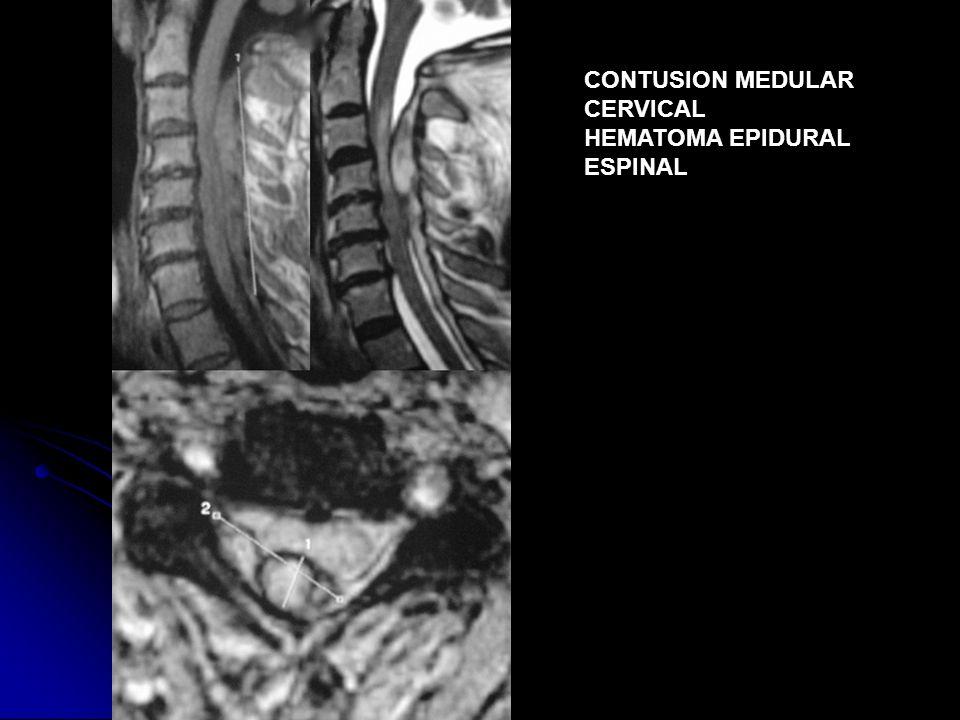 CONTUSION MEDULAR CERVICAL HEMATOMA EPIDURAL ESPINAL