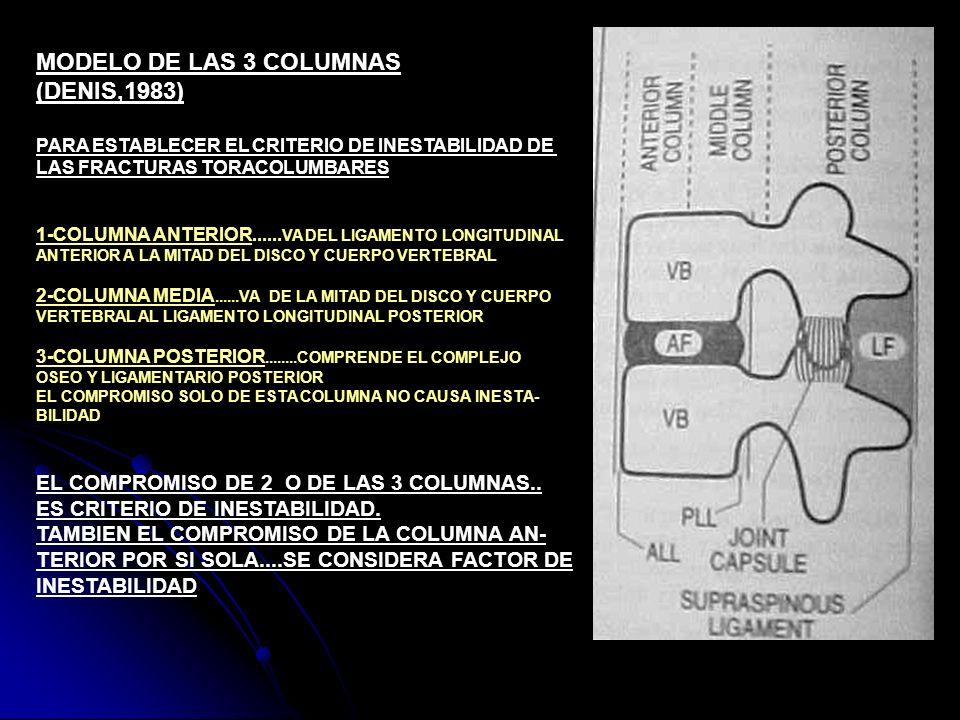 MODELO DE LAS 3 COLUMNAS (DENIS,1983) PARA ESTABLECER EL CRITERIO DE INESTABILIDAD DE LAS FRACTURAS TORACOLUMBARES 1-COLUMNA ANTERIOR...... VA DEL LIG