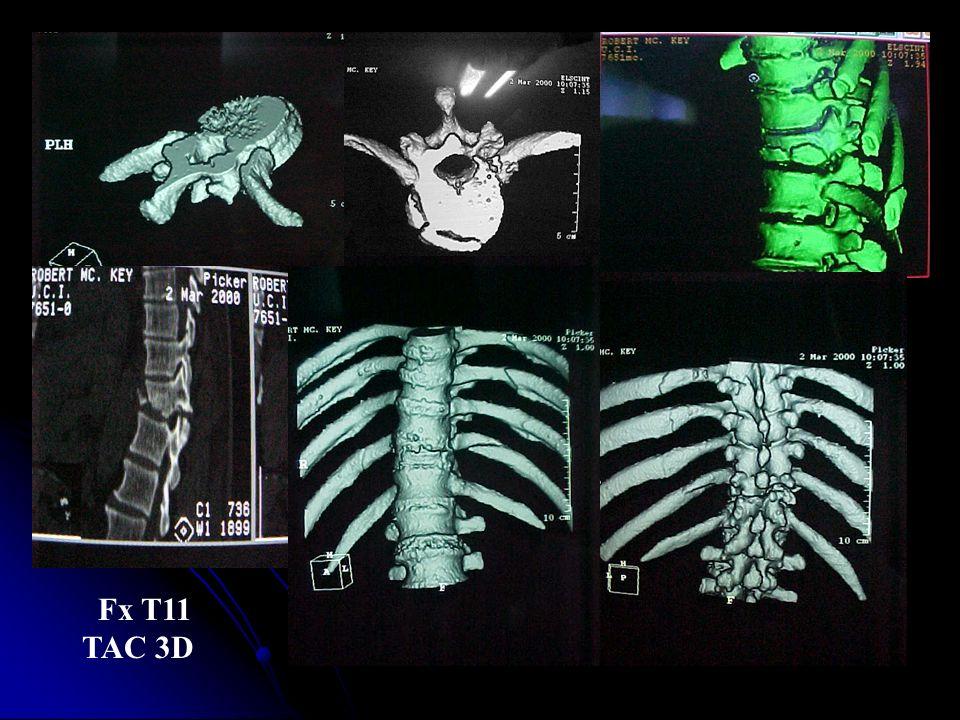 Fx T11 TAC 3D