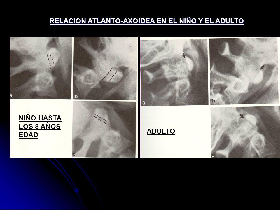 RELACION ATLANTO-AXOIDEA EN EL NIÑO Y EL ADULTO ADULTO NIÑO HASTA LOS 8 AÑOS EDAD