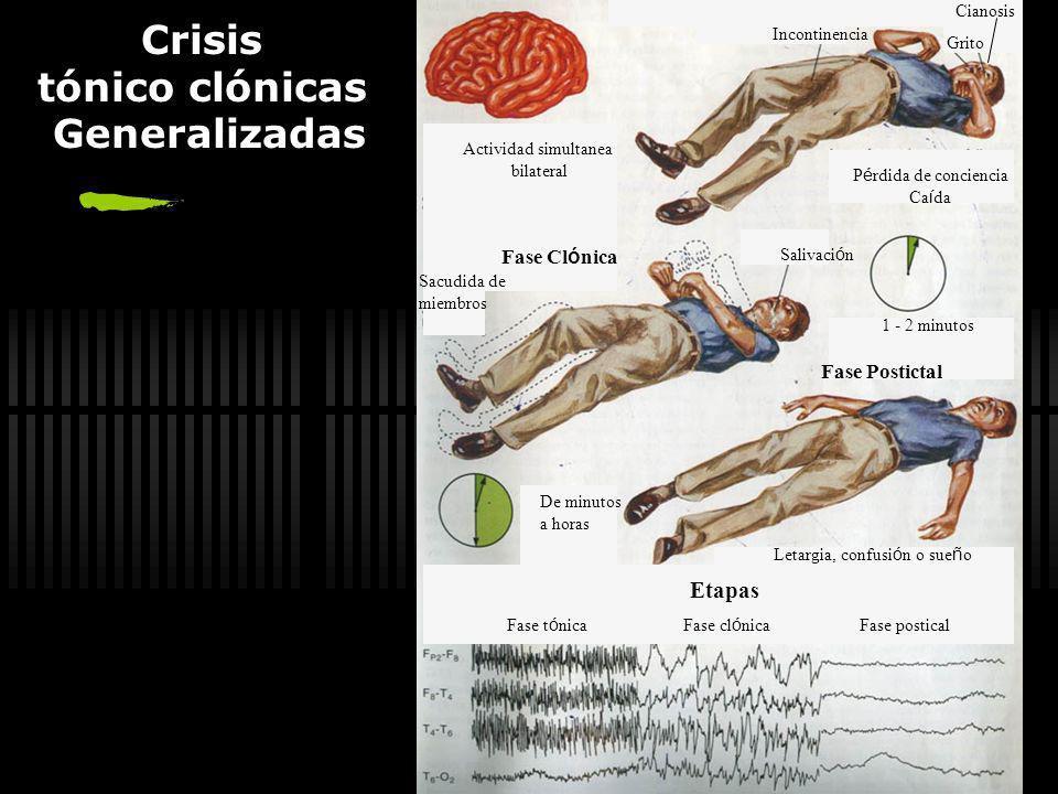 Ausencias Alerta antes y despu é s de la crisis Crisis simult á nea bilateral P é rdida de atenci ó n Mirada perdida Parpadeo o Movimiento de ojos Ini