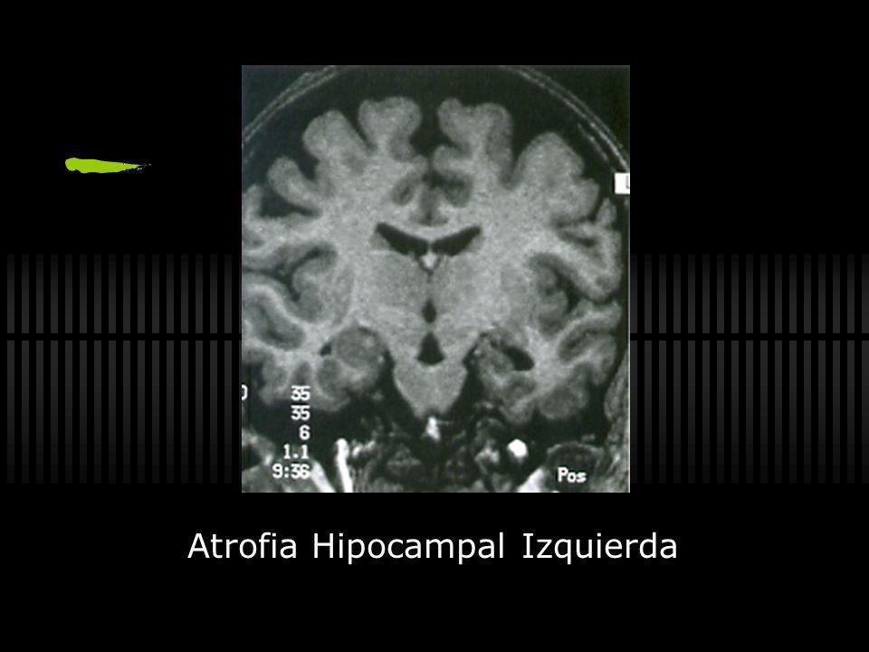 Síndromes de Epilepsia Espasmos Infantiles (sme west) EEG Hipsarritmico) Epilepsia Miocl ó nica Juvenil Al despertar Sobresalto de brazos, hombros y c