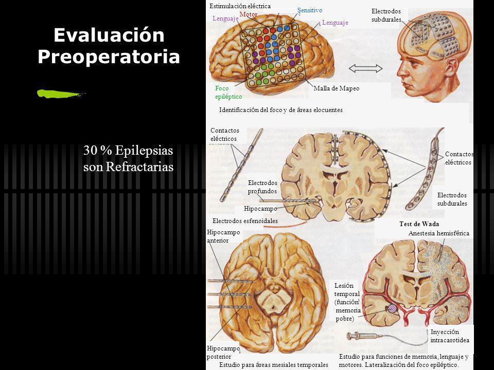 Suspensión del Tratamiento Epilepsia Primaria = 2 años Epilepsia Secundaria =4 a Reducción gradual