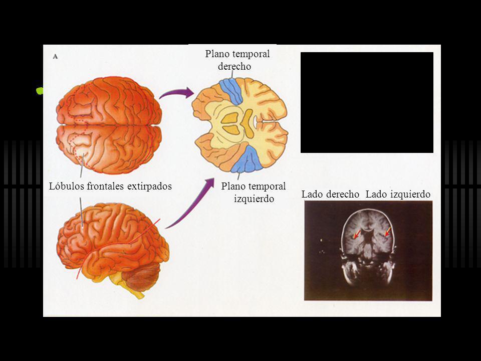 Corteza anterior de la palabra (área de Broca) Corteza posterior de la palabra (área de Wernicke) Corteza superior de la palabra (motora suplementaria