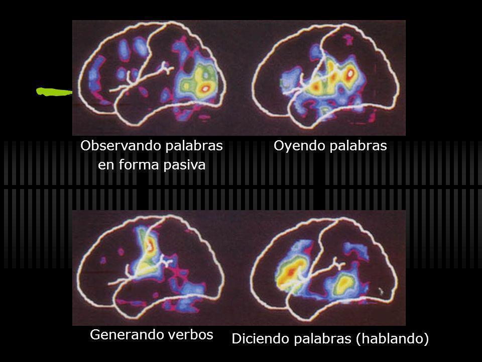 Lóbulos frontales extirpados Plano temporal izquierdo Plano temporal derecho Lado derechoLado izquierdo